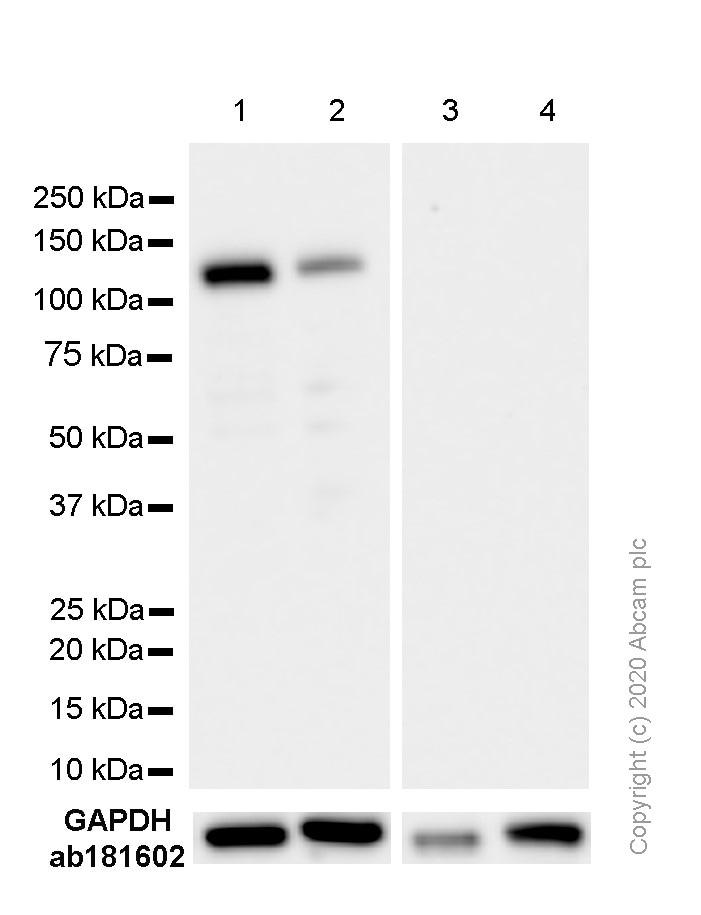 Western blot - Anti-Androgen Receptor antibody [EPR1535(2)] - BSA and Azide free (ab271891)