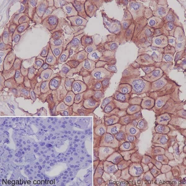 Immunohistochemistry (Formalin/PFA-fixed paraffin-embedded sections) - Anti-Integrin alpha 2 antibody [EPR5788] - BSA and Azide free (ab271894)