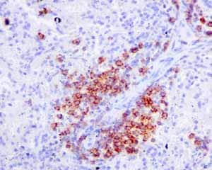 Immunohistochemistry (Formalin/PFA-fixed paraffin-embedded sections) - Anti-CD19 antibody [EPR5906] - BSA and Azide free (ab271904)