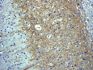 Immunohistochemistry (Formalin/PFA-fixed paraffin-embedded sections) - Anti-Somatostatin Receptor 2 antibody [UMB1] - BSA and Azide free (ab271907)
