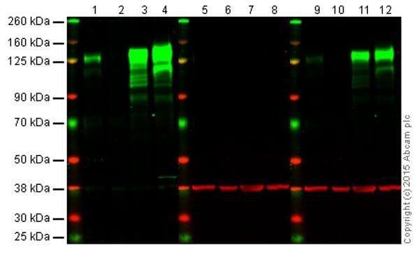 Western blot - Anti-Integrin beta 1 antibody [EPR1040Y] - BSA and Azide free (ab271909)