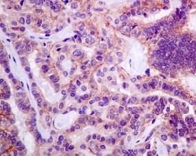 Immunohistochemistry (Formalin/PFA-fixed paraffin-embedded sections) - Anti-Desmoglein 2/DSG2 antibody [EPR6768] - BSA and Azide free (ab271913)