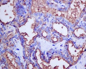 Immunohistochemistry (Formalin/PFA-fixed paraffin-embedded sections) - Anti-Thyroglobulin antibody [EPR9730] - BSA and Azide free (ab271919)