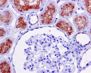 Immunohistochemistry (Formalin/PFA-fixed paraffin-embedded sections) - Anti-P Glycoprotein antibody [EPR10363] - BSA and Azide free (ab271923)
