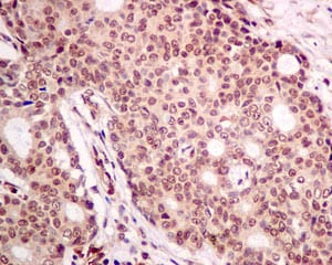 Immunohistochemistry (Formalin/PFA-fixed paraffin-embedded sections) - Anti-PTEN antibody [EPR9941-2] - BSA and Azide free (ab271924)