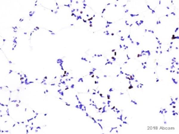 Immunohistochemistry (Formalin/PFA-fixed paraffin-embedded sections) - Anti-CD4 antibody [EPR19514] - BSA and Azide free (ab271945)