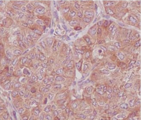 Immunohistochemistry (Formalin/PFA-fixed paraffin-embedded sections) - Anti-RAB8A antibody [EPR14873] - BSA and Azide free (ab271954)