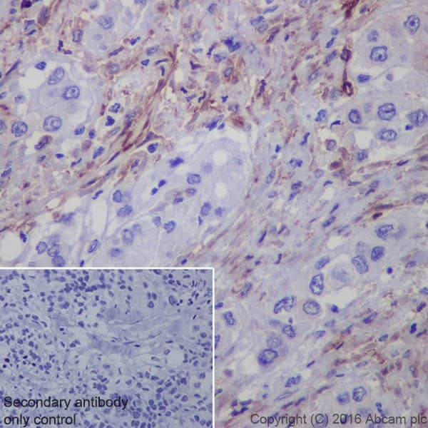 Immunohistochemistry (Formalin/PFA-fixed paraffin-embedded sections) - Anti-Fibroblast activation protein, alpha antibody [EPR20021] - BSA and Azide free (ab271976)