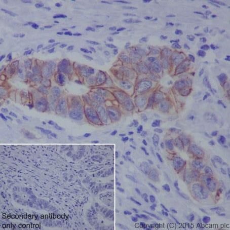 Immunohistochemistry (Formalin/PFA-fixed paraffin-embedded sections) - Anti-L1CAM antibody [EPR18750] (ab271982)