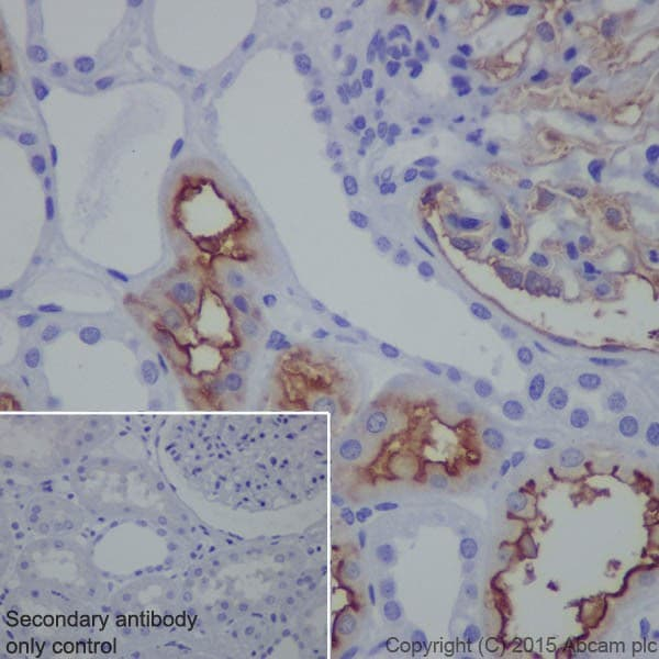 Immunohistochemistry (Formalin/PFA-fixed paraffin-embedded sections) - Anti-CD10 antibody [EPR5904-110] - BSA and Azide free (ab271985)