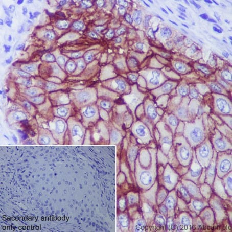 Immunohistochemistry (Formalin/PFA-fixed paraffin-embedded sections) - Anti-TROP2 antibody [EPR20043] - BSA and Azide free (ab271996)