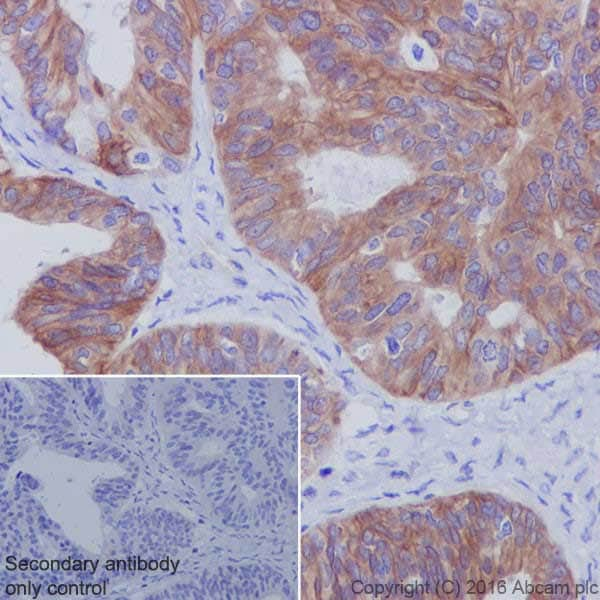 Immunohistochemistry (Formalin/PFA-fixed paraffin-embedded sections) - Anti-Met (c-Met) antibody [EPR19067] - BSA and Azide free (ab271998)