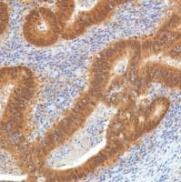 Immunohistochemistry (Formalin/PFA-fixed paraffin-embedded sections) - Anti-SETBP1 antibody [SP312] - BSA and Azide free (ab272000)