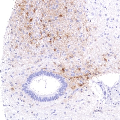 Immunohistochemistry (Formalin/PFA-fixed paraffin-embedded sections) - Anti-Alpha B Crystallin antibody [SP288] - BSA and Azide free (ab272007)