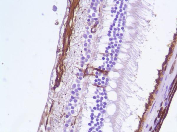 Immunohistochemistry (Formalin/PFA-fixed paraffin-embedded sections) - Anti-GFAP antibody [SP78] - BSA and Azide free (ab272008)