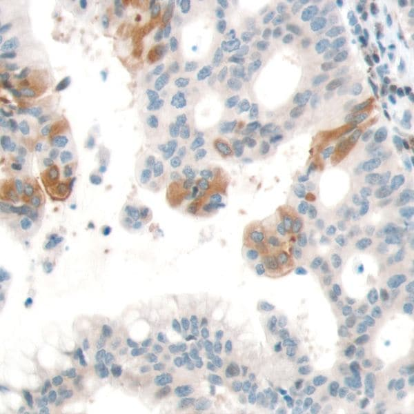 Immunohistochemistry (Formalin/PFA-fixed paraffin-embedded sections) - Anti-PTEN antibody [SP170] - BSA and Azide free (ab272009)