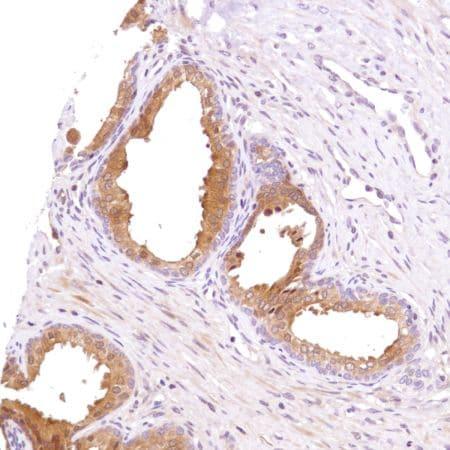 Immunohistochemistry (Formalin/PFA-fixed paraffin-embedded sections) - Anti-PHLPP2 antibody [SP220] - BSA and Azide free (ab272010)