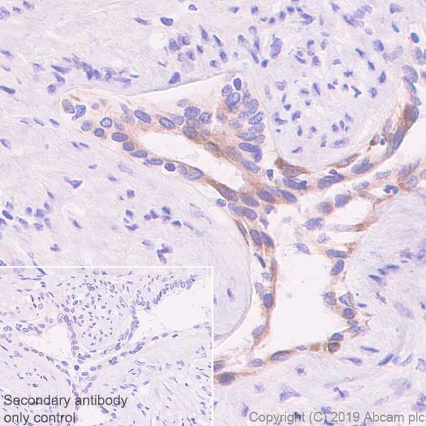 Immunohistochemistry (Formalin/PFA-fixed paraffin-embedded sections) - Anti-PHLPP2 antibody [SP220] - BSA and Azide free (ab272010)