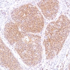 Immunohistochemistry (Formalin/PFA-fixed paraffin-embedded sections) - Anti-STAT5 antibody [SP283] - BSA and Azide free (ab272013)