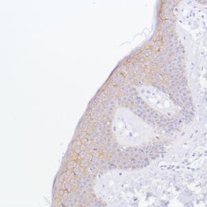 Immunohistochemistry (Formalin/PFA-fixed paraffin-embedded sections) - Anti-TROP2 antibody [SP293] - BSA and Azide free (ab272014)