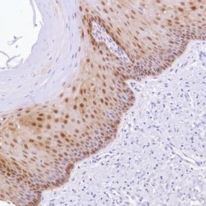 Immunohistochemistry (Formalin/PFA-fixed paraffin-embedded sections) - Anti-ALDH3A1 antibody [SP298] - BSA and Azide free (ab272015)