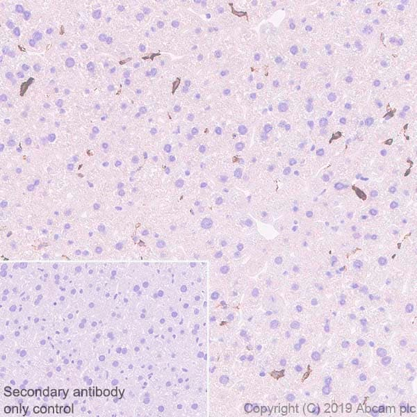Immunohistochemistry (Formalin/PFA-fixed paraffin-embedded sections) - Anti-MARCO antibody [EPR22944-64] - BSA and Azide free (ab272019)