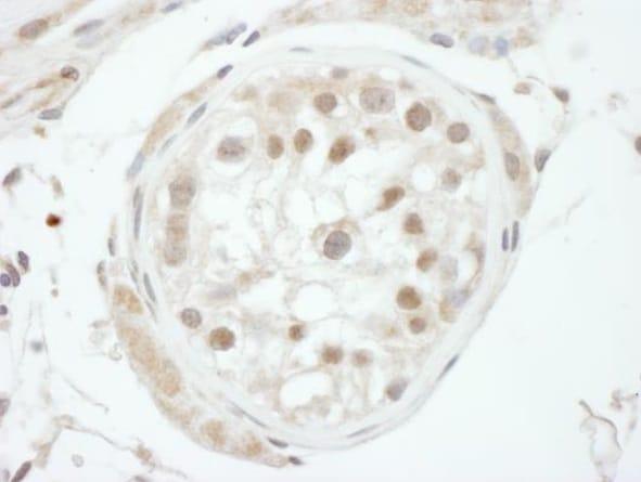 Immunohistochemistry (Formalin/PFA-fixed paraffin-embedded sections) - Anti-GTF2H1 antibody (ab272022)
