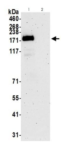Immunoprecipitation - Anti-KMT2A / MLL antibody (ab272023)