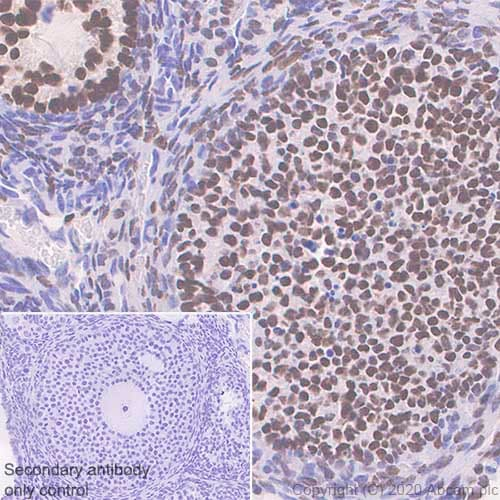 Immunohistochemistry (Formalin/PFA-fixed paraffin-embedded sections) - Anti-FOXL2 antibody [EPR23523-68] - BSA and Azide free (ab272050)