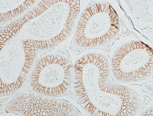 Immunohistochemistry (Formalin/PFA-fixed paraffin-embedded sections) - Anti-beta Catenin antibody [BLR086G] - BSA free (ab272069)