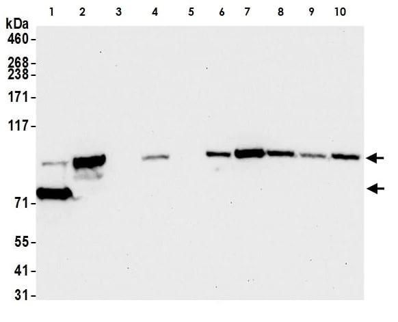 Western blot - Anti-beta Catenin antibody [BLR086G] - BSA and Azide free (ab272069)