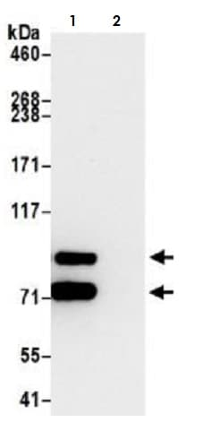 Immunoprecipitation - Anti-beta Catenin antibody [BLR086G] - BSA free (ab272069)