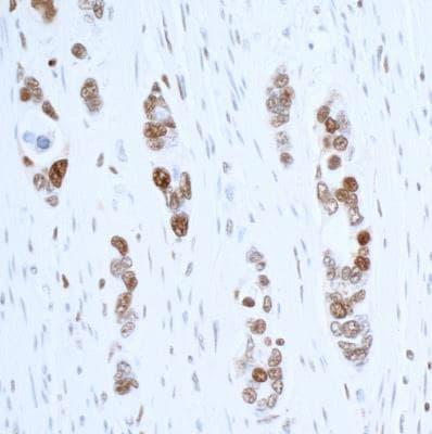 Immunohistochemistry (Formalin/PFA-fixed paraffin-embedded sections) - Anti-PCNA antibody [BLR075G] - BSA free (ab272076)