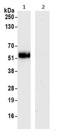 Immunoprecipitation - Anti-VISTA antibody [BLR035F] - BSA free (ab272080)