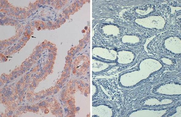Immunohistochemistry (Formalin/PFA-fixed paraffin-embedded sections) - Anti-Protein Kinase B antibody (ab272113)