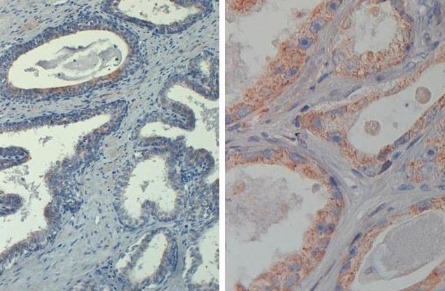 Immunohistochemistry (Formalin/PFA-fixed paraffin-embedded sections) - Biotin Anti-AKT1 (phospho T308) antibody [18F3.H11] (ab272114)
