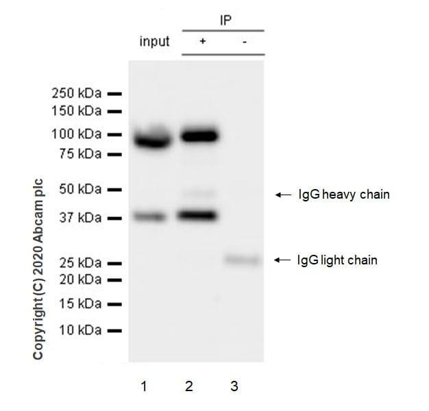 Immunoprecipitation - Anti-UBE3A antibody [EPR23077-14] - BSA and Azide free (ab272173)