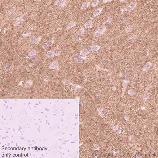Immunohistochemistry (Formalin/PFA-fixed paraffin-embedded sections) - Anti-Versican antibody [EPR23135-58] - BSA and Azide free (ab272178)