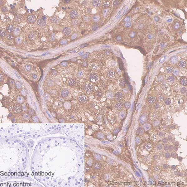 Immunohistochemistry (Formalin/PFA-fixed paraffin-embedded sections) - Anti-Serpin A5 antibody [EPR23337-69] - BSA and Azide free (ab272222)