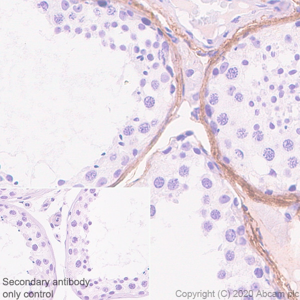 Immunohistochemistry (Formalin/PFA-fixed paraffin-embedded sections) - Anti-Versican antibody [EPR23374-151] - BSA and Azide free (ab272224)