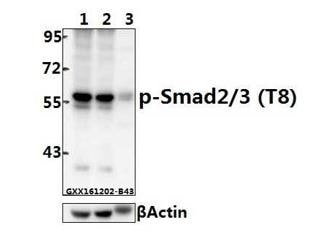 Western blot - Anti-Smad2 + Smad3 (phospho T8) antibody (ab272332)
