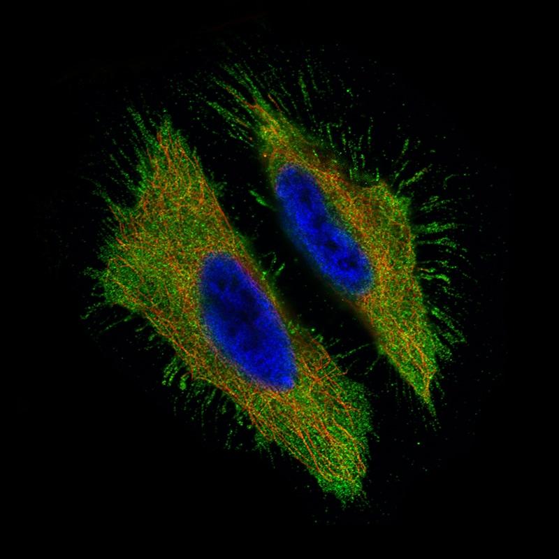 Immunocytochemistry/ Immunofluorescence - Anti-MUC16 antibody [CL2782] (ab272333)