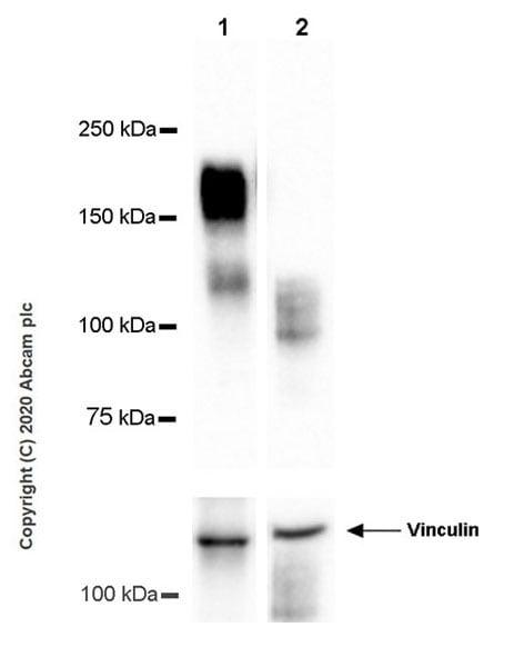 Western blot - Anti-GPCR GPR64 antibody [EPR23658-2] (ab272390)