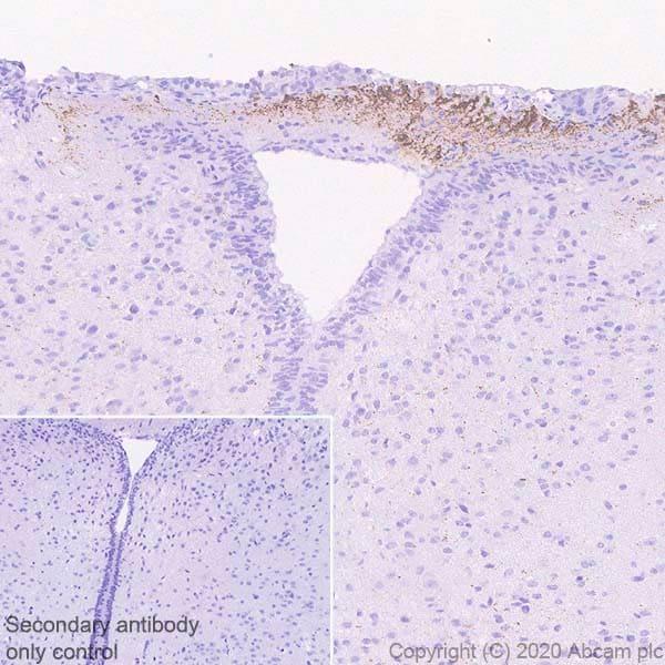 Immunohistochemistry (Formalin/PFA-fixed paraffin-embedded sections) - Anti-CRF antibody [EPR23255-162] (ab272391)
