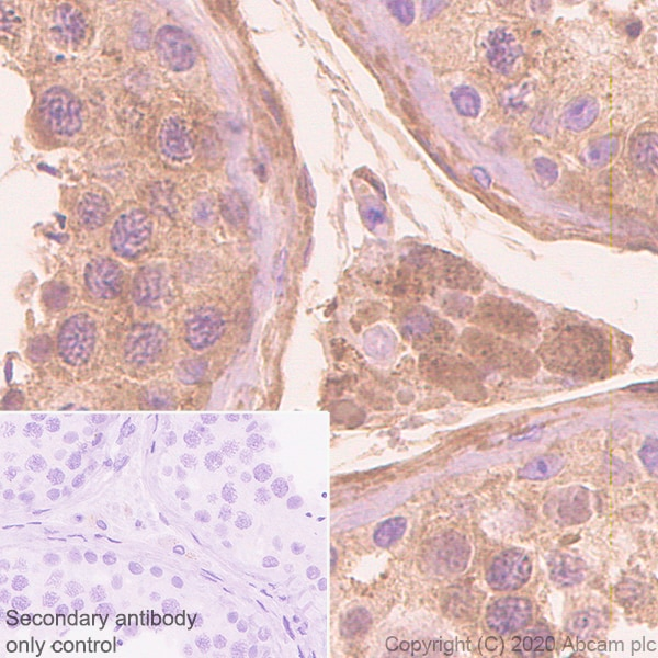 Immunohistochemistry (Formalin/PFA-fixed paraffin-embedded sections) - Anti-Serpin A5 antibody [EPR23337-112] - BSA and Azide free (ab272396)