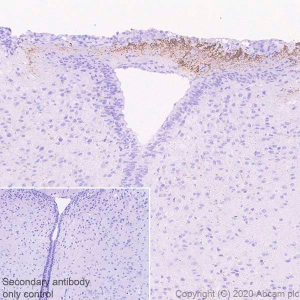 Immunohistochemistry (Formalin/PFA-fixed paraffin-embedded sections) - Anti-CRF antibody [EPR23255-162] - BSA and Azide free (ab272397)
