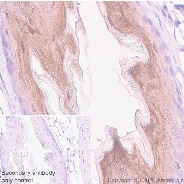Immunohistochemistry (Formalin/PFA-fixed paraffin-embedded sections) - Anti-IL36 alpha/IL-1F6 antibody [EPR23152-241] - BSA and Azide free (ab272401)