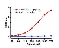 ELISA - Anti-SARS-CoV-2 envelope protein antibody - Coronavirus (ab272503)