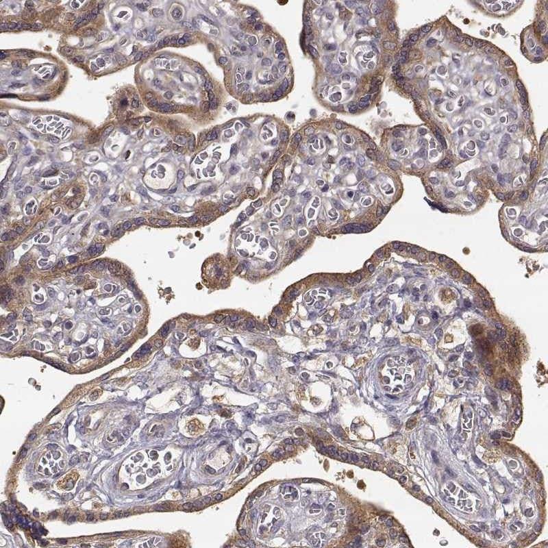 Immunohistochemistry (Formalin/PFA-fixed paraffin-embedded sections) - Anti-CRIM1 antibody (ab272542)