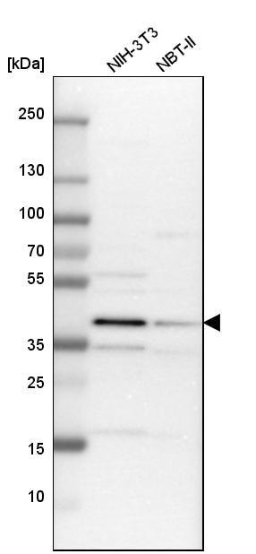 Western blot - Anti-TRIB2 antibody (ab272544)